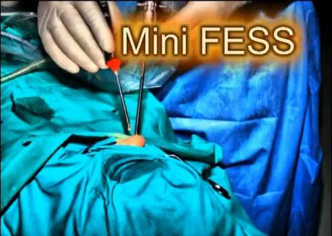Endoskopowe1